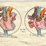 Schemat operacji Blalock-Taussig, ze sztuczną wstawką, autorstwa prof. Kossakowskiego