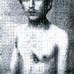 Kantor Josif Charitonowicz, kolejny pacjent Borzymowskiego operowany 6. czerwca 1908 r. z powodu dwóch głębokich ran drążących do prawej komory serca